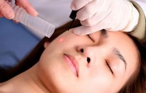 Điều trị thẩm mỹ da bằng laser vi điểm